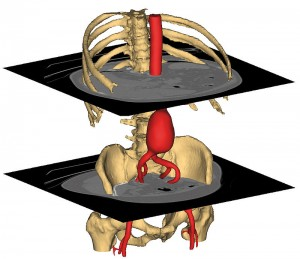 model 3D tomografie computerizat abdominala mimics
