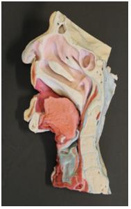 medicina craniu plastic printat 3d