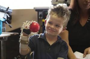 copil cu proteza de mana printata 3D