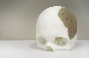 craniu printat 3D