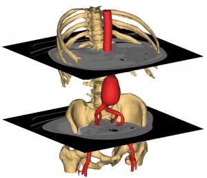 model 3D tomografie computerizat abdominala mimics