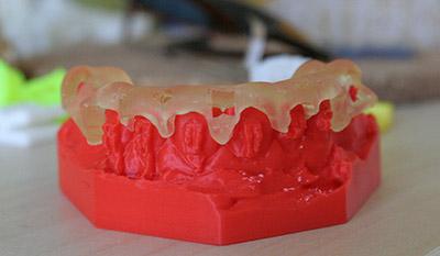 maxilar studiu printat 3D