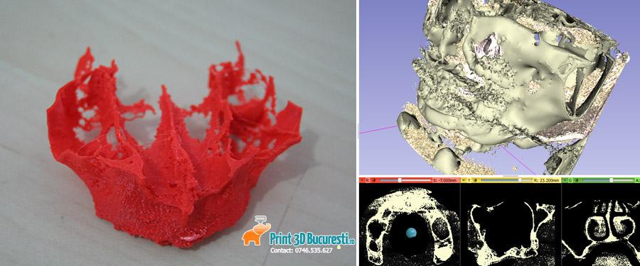 ghid chirurgical printat 3D